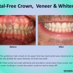 Metal Crown Veneers and Whitening