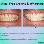 Metal Crown Veneers and Whitening 2
