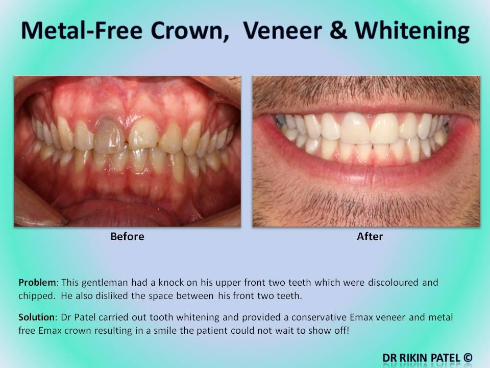 Patient Gallery Dentist Ruislip Dentist Pinner Hygienist