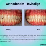 Orthodontics Invisalign 4