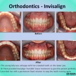 Orthodontics Invisalign 5