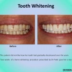 Tooth Whitening 3