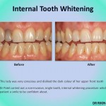 Tooth Whitening 4